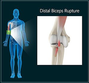 Distal Biceps Rupture