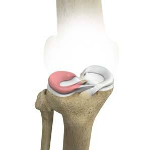 Lateral Meniscus Syndrome